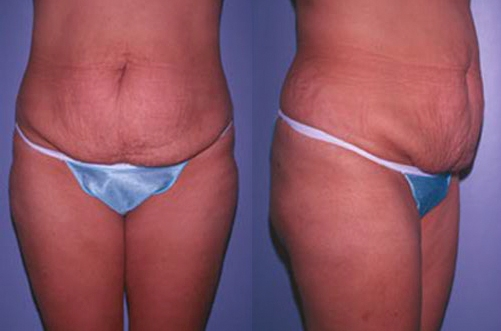 16-Abdominoplasty-Tummy-Tuck-Before.jpg
