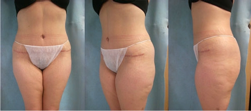 17-Abdominoplasty-Tummy-Tuck-After.jpg