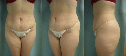 17-Abdominoplasty-Tummy-Tuck-Before.jpg