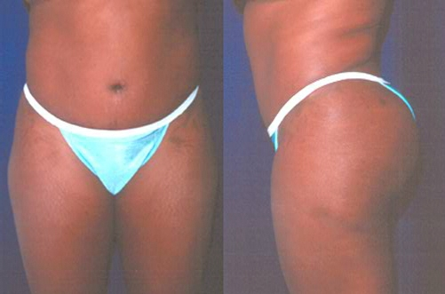 18-Abdominoplasty-Tummy-Tuck-After.jpg