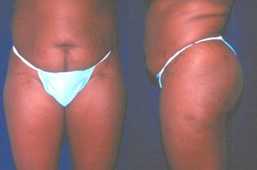 18-Abdominoplasty-Tummy-Tuck-Before.jpg