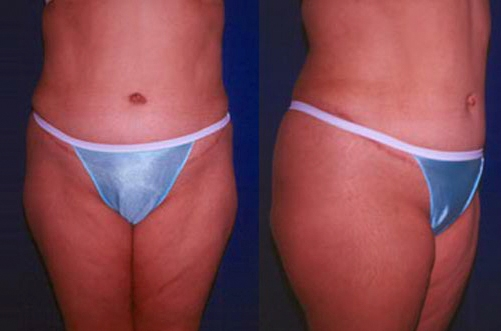 19-Abdominoplasty-Tummy-Tuck-After.jpg