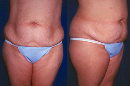 19-Abdominoplasty-Tummy-Tuck-Before.jpg