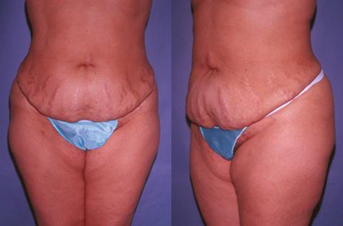 20-Abdominoplasty-Tummy-Tuck-Before.jpg