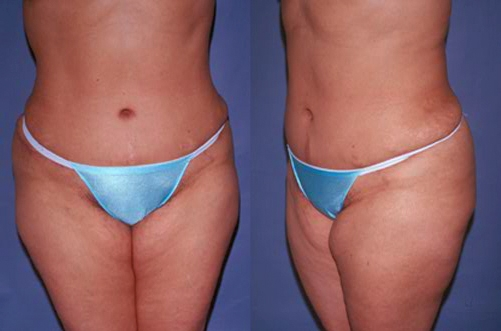 20-Abdominoplasty-Tummy-Tuck-After.jpg