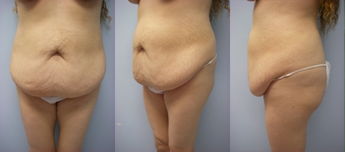 21-Abdominoplasty-Tummy-Tuck-Before.jpg