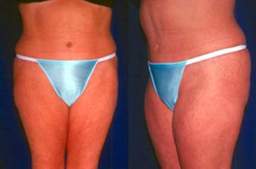 22-Abdominoplasty-Tummy-Tuck-After.jpg