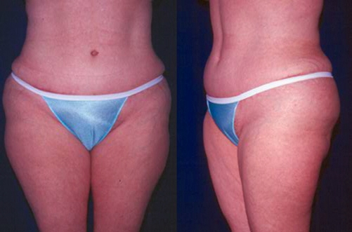 23-Abdominoplasty-Tummy-Tuck-After.jpg