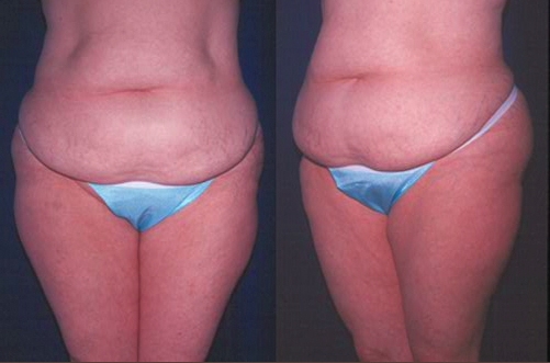 23-Abdominoplasty-Tummy-Tuck-Before.jpg