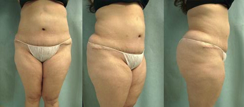 24-Abdominoplasty-Tummy-Tuck-After.jpg