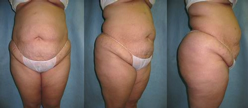 24-Abdominoplasty-Tummy-Tuck-Before.jpg