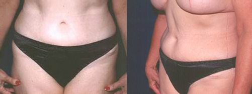 25-Abdominoplasty-Tummy-Tuck--After.jpg