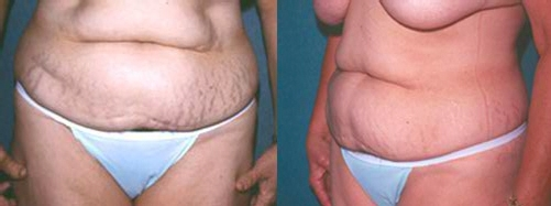 25-Abdominoplasty-Tummy-Tuck-Before.jpg