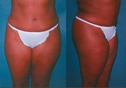 26-Abdominoplasty-Tummy-Tuck-After.jpg