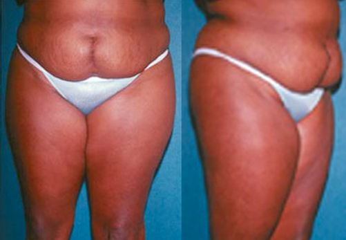 26-Abdominoplasty-Tummy-Tuck-Before.jpg