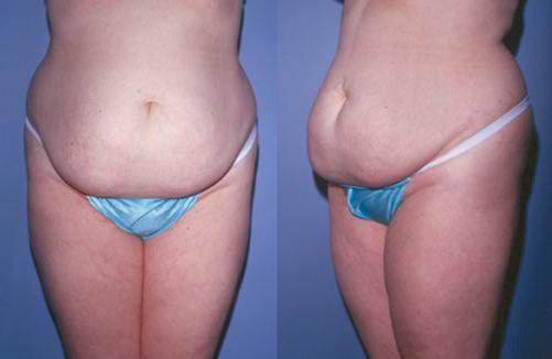 27-Abdominoplasty-Tummy-Tuck-Before.jpg