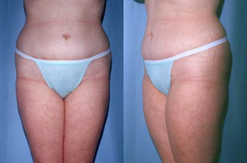 27-Abdominoplasty-Tummy-Tuck-After.jpg