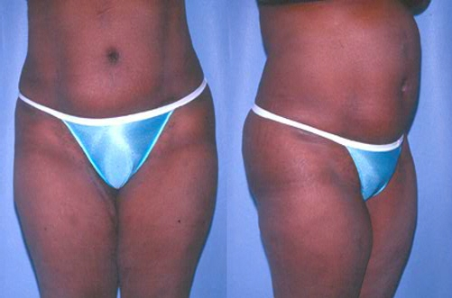 28-Abdominoplasty-Tummy-Tuck-After.jpg
