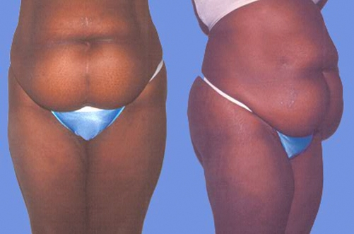 28-Abdominoplasty-Tummy-Tuck-Before.jpg