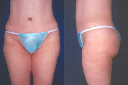 29-Abdominoplasty-Tummy-Tuck-After.jpg