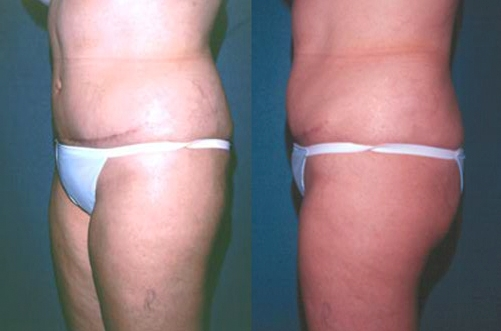 30-Abdominoplasty-Tummy-Tuck-After.jpg