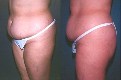 30-Abdominoplasty-Tummy-Tuck-Before.jpg