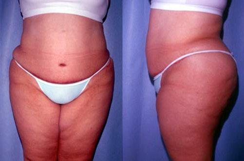 31-Abdominoplasty-Tummy-Tuck-After.jpg