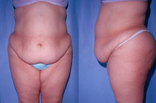 31-Abdominoplasty-Tummy-Tuck-Before.jpg