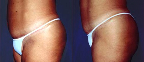 32-Abdominoplasty-Tummy-Tuck-After.jpg