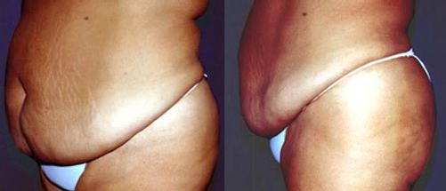 32-Abdominoplasty-Tummy-Tuck-Before.jpg