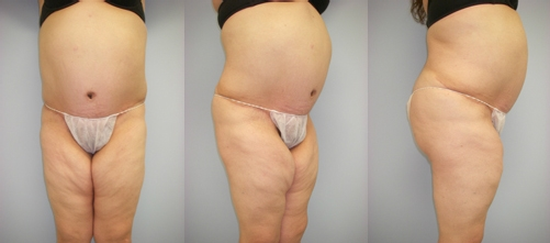 33-Abdominoplasty-Tummy-Tuck-After.jpg