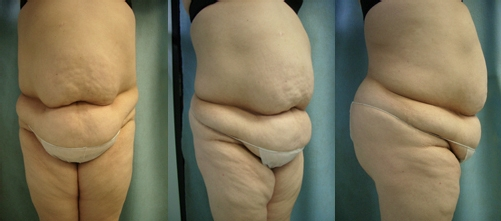 33-Abdominoplasty-Tummy-Tuck-Before.jpg