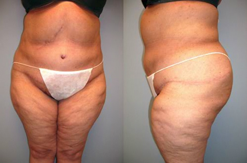 34-Abdominoplasty-Tummy-Tuck-After.jpg
