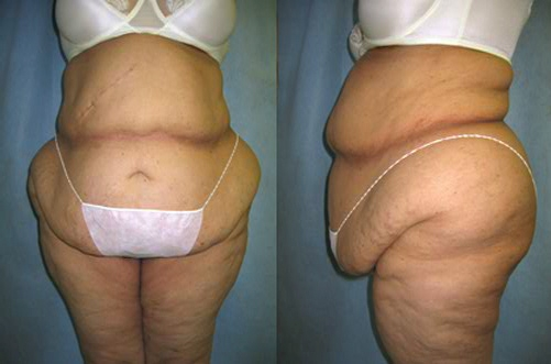 34-Abdominoplasty-Tummy-Tuck-Before.jpg