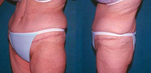 35-Abdominoplasty-Tummy-Tuck-After.jpg