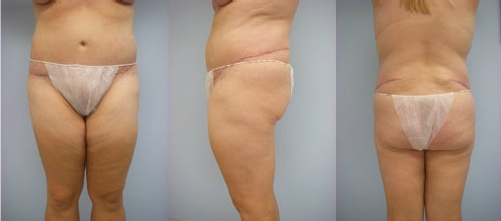 1-Extended-Abdominoplasty-Tummy-Tuck-After.jpg