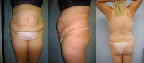 1-Extended-Abdominoplasty-Tummy-Tuck-Before.jpg