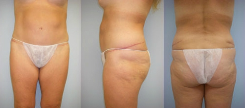 2-Extended-Abdominoplasty-Tummy-Tuck-After.jpg