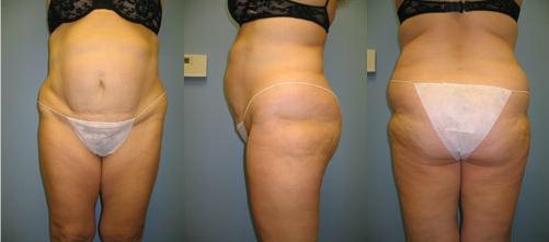 2-Extended-Abdominoplasty-Tummy-Tuck-Before.jpg