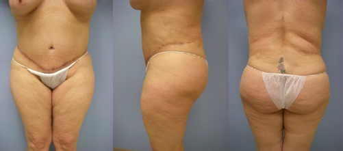 3-Extended-Abdominoplasty-Tummy-Tuck-After.jpg