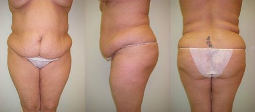 3-Extended-Abdominoplasty-Tummy-Tuck-Before.jpg