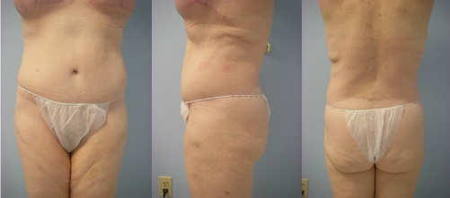 4-Extended-Abdominoplasty-Tummy-Tuck-After.jpg