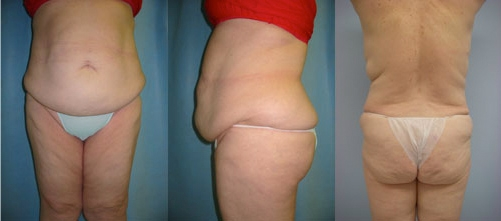 4-Extended-Abdominoplasty-Tummy-Tuck-Before.jpg