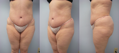 5-Extended-Abdominoplasty-Tummy-Tuck-After.jpg