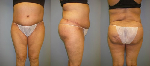 6-Extended-Abdominoplasty-Tummy-Tuck-After.jpg