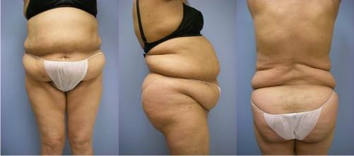 6-Extended-Abdominoplasty-Tummy-Tuck-Before.jpg
