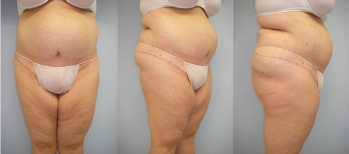 7-Extended-Abdominoplasty-Tummy-Tuck-After.jpg