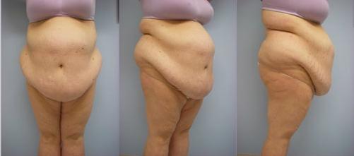 7-Extended-Abdominoplasty-Tummy-Tuck-Before.jpg