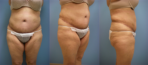 8-Extended-Abdominoplasty-Tummy-Tuck-After.jpg