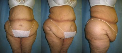 9-Extended-Abdominoplasty-Tummy-Tuck-Before.jpg